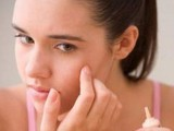 Removing Acne Scars Naturally