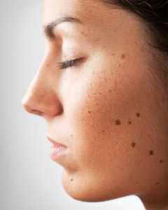 Mole on Face Removal Home Remedy Tips in Urdu