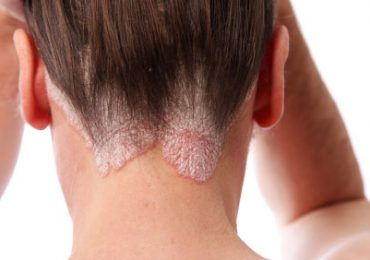 Psoriasis Treatment in Urdu Chambal ka Ilaj at Home in Pakistan Skin Disease