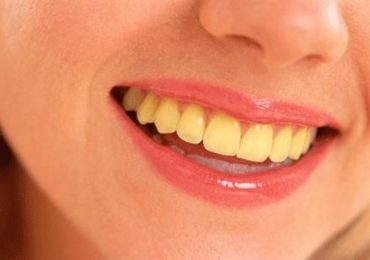 Yellow Teeth Whitening Tips in Urdu Treatment Home Remedy