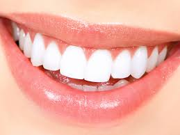 Laser Teeth Whitening Cost in Pakistan Karachi Islamabad Lahore